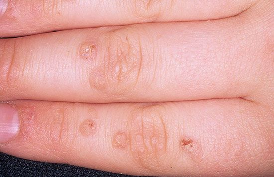 flat warts on hands images
