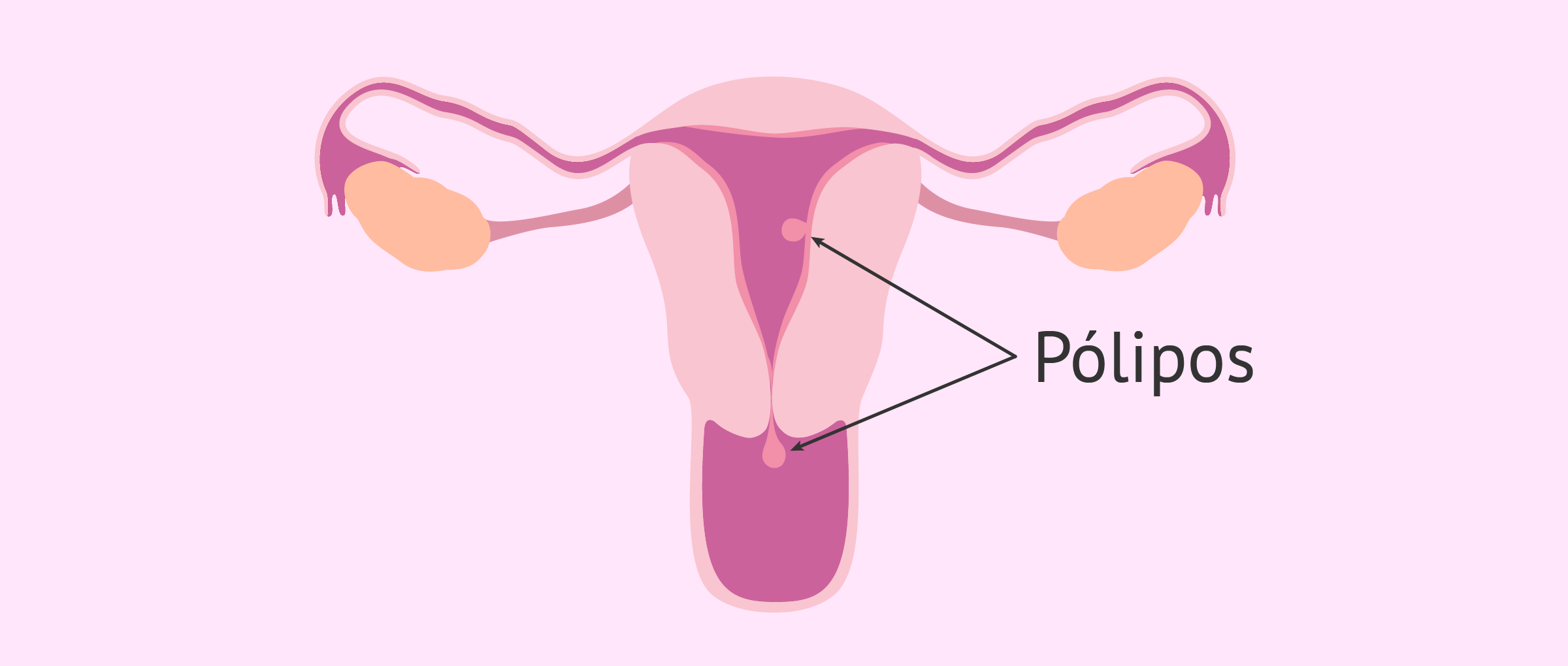 cancer endometrial mujer joven