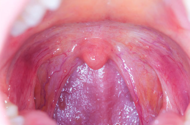 hpv in throat symptoms