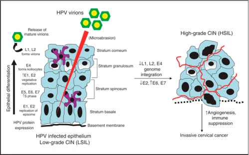 hpv and cervical cancer mechanism helminthic therapy ibs