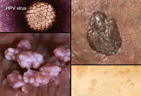 hpv vs herpes warts