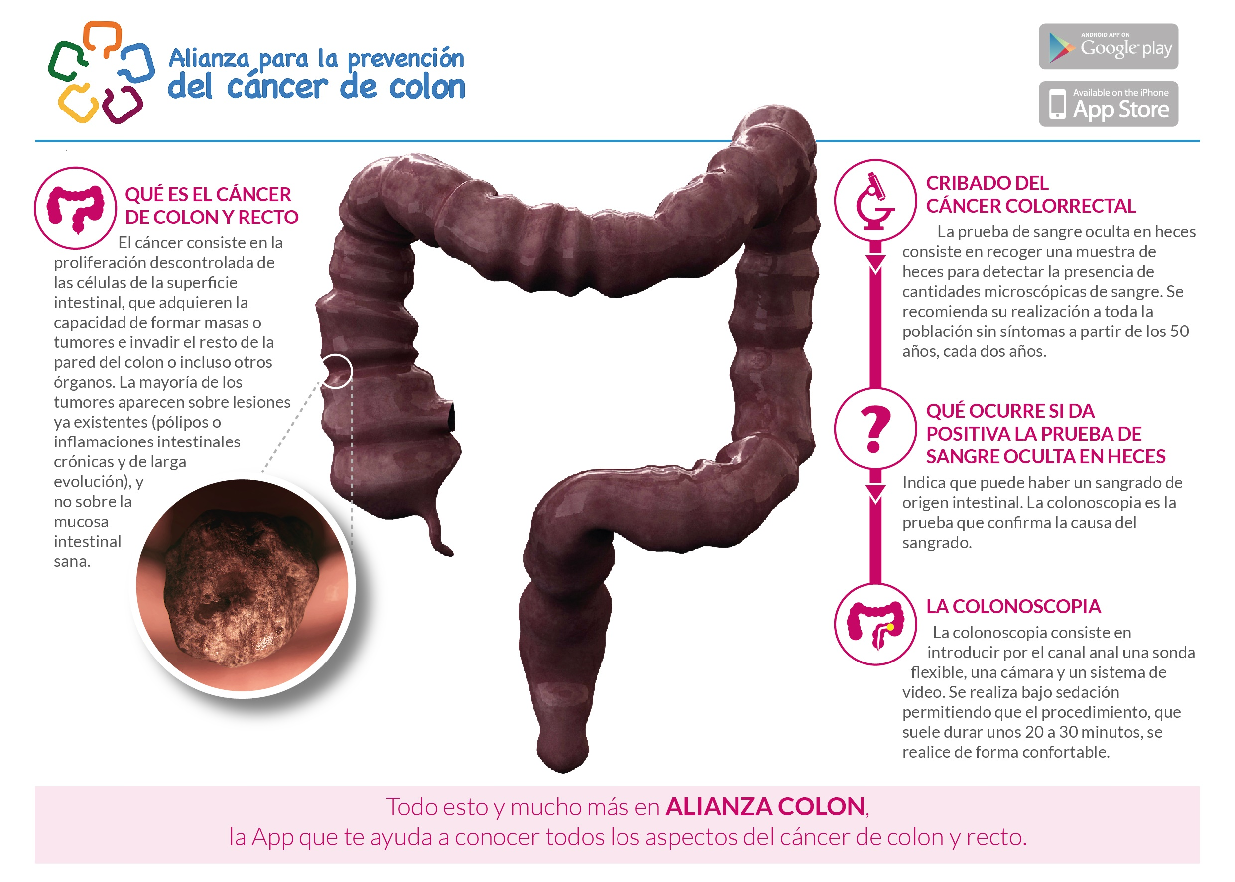Cancerul de colon - Previne cancerul