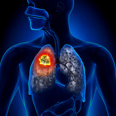 hpv esophageal cancer prognosis parazitii citate celebre