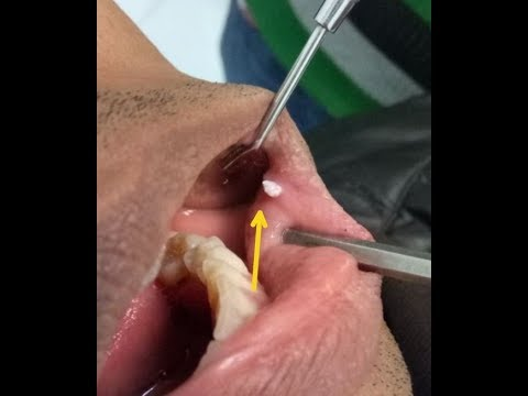 virusi medicina hpv squamous cell carcinoma stage 4
