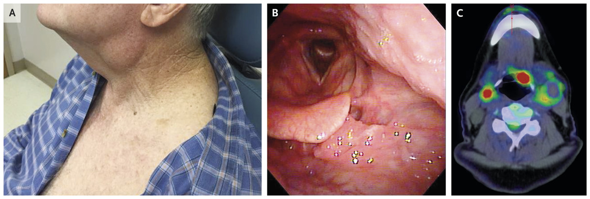hpv squamous cell carcinoma skin hpv warts and throat cancer