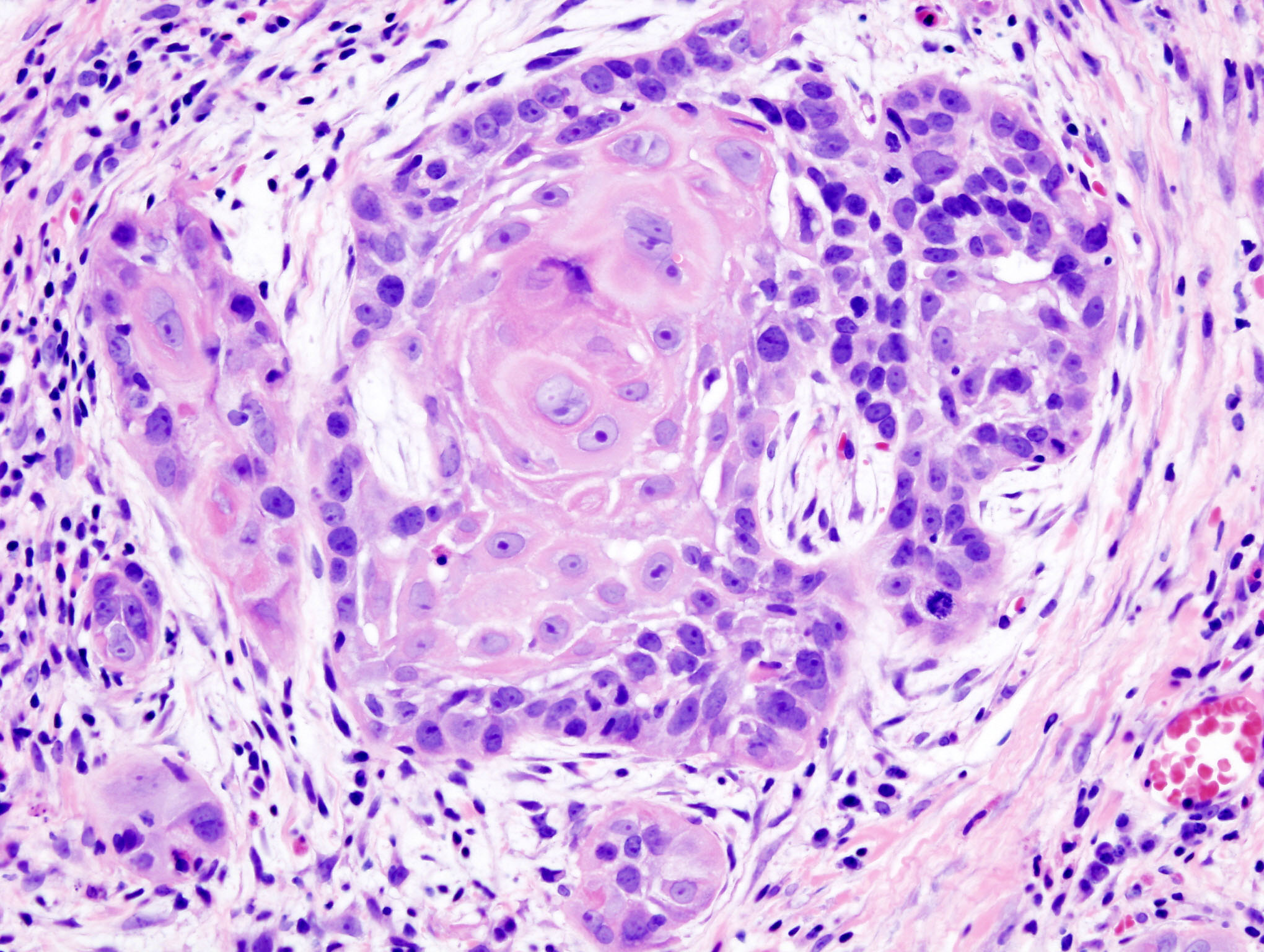 esophageal squamous papilloma and hpv