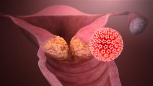 human papilloma virus signs and symptoms link between hpv and prostate cancer