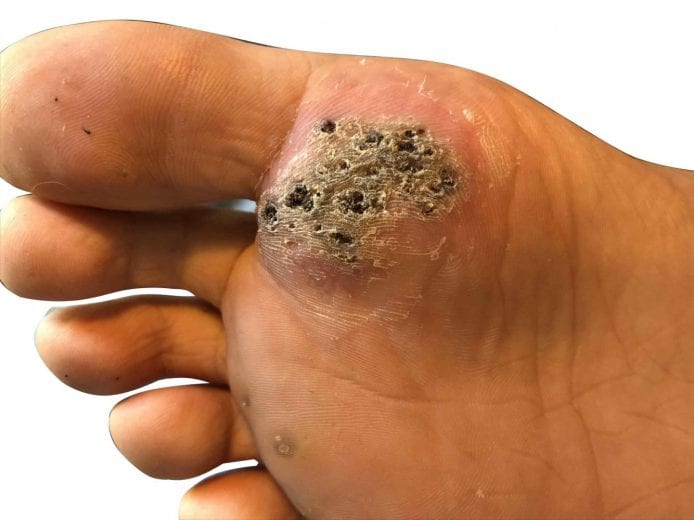 wart underneath foot