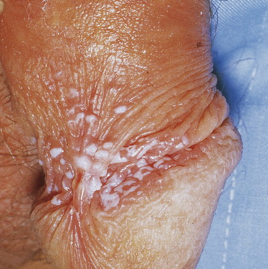 hpv mouth kissing foot warts how to get rid of