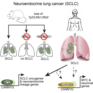 neuroendocrine cancer in lung