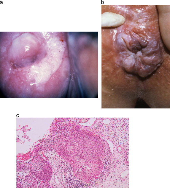 hpv dry skin patches hpv head and neck cancer staging