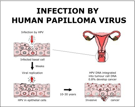 virus hpv e cancer