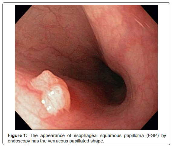 esophageal papilloma symptoms