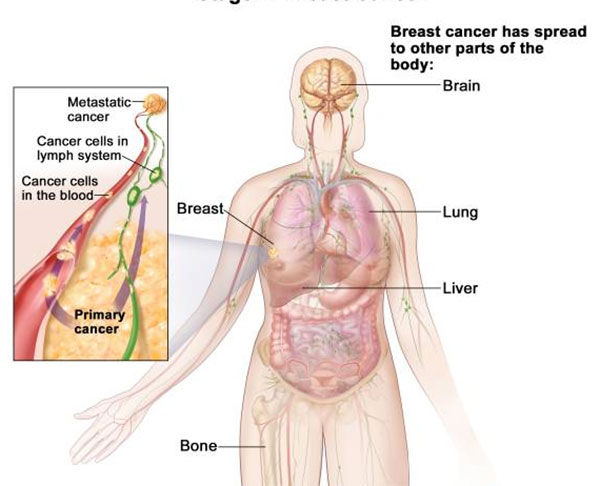 cancerul metastatic