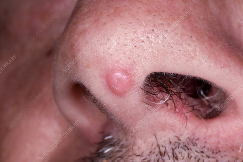 papilloma in your nose
