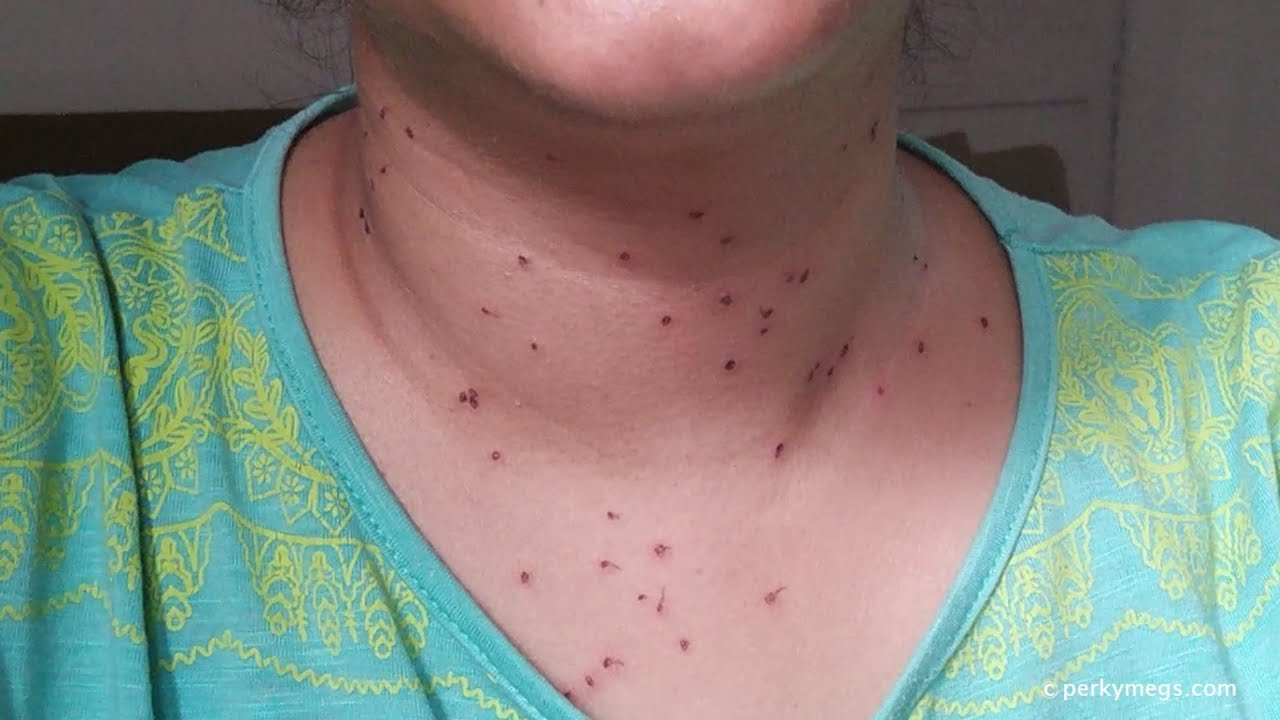 warts treatment on neck