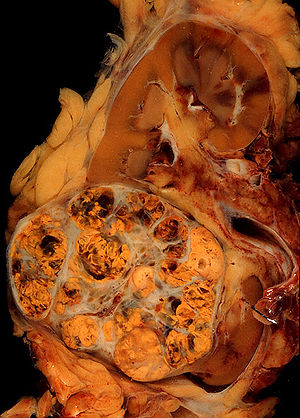 cancer renal icd 10