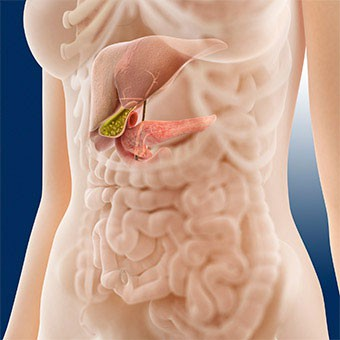 Cancer pancreatic - Wikipedia