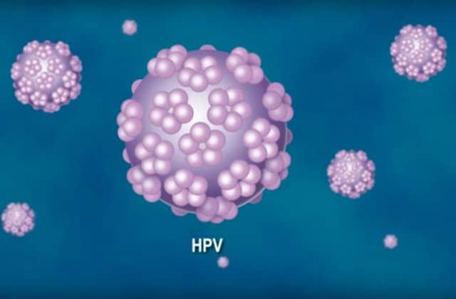 hpv gorge homme do papillomas cause pain