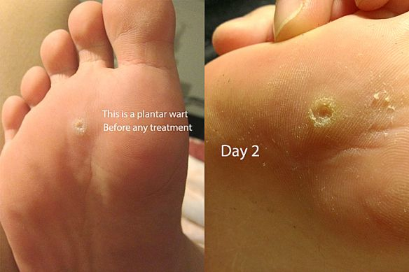 planters wart on foot removal