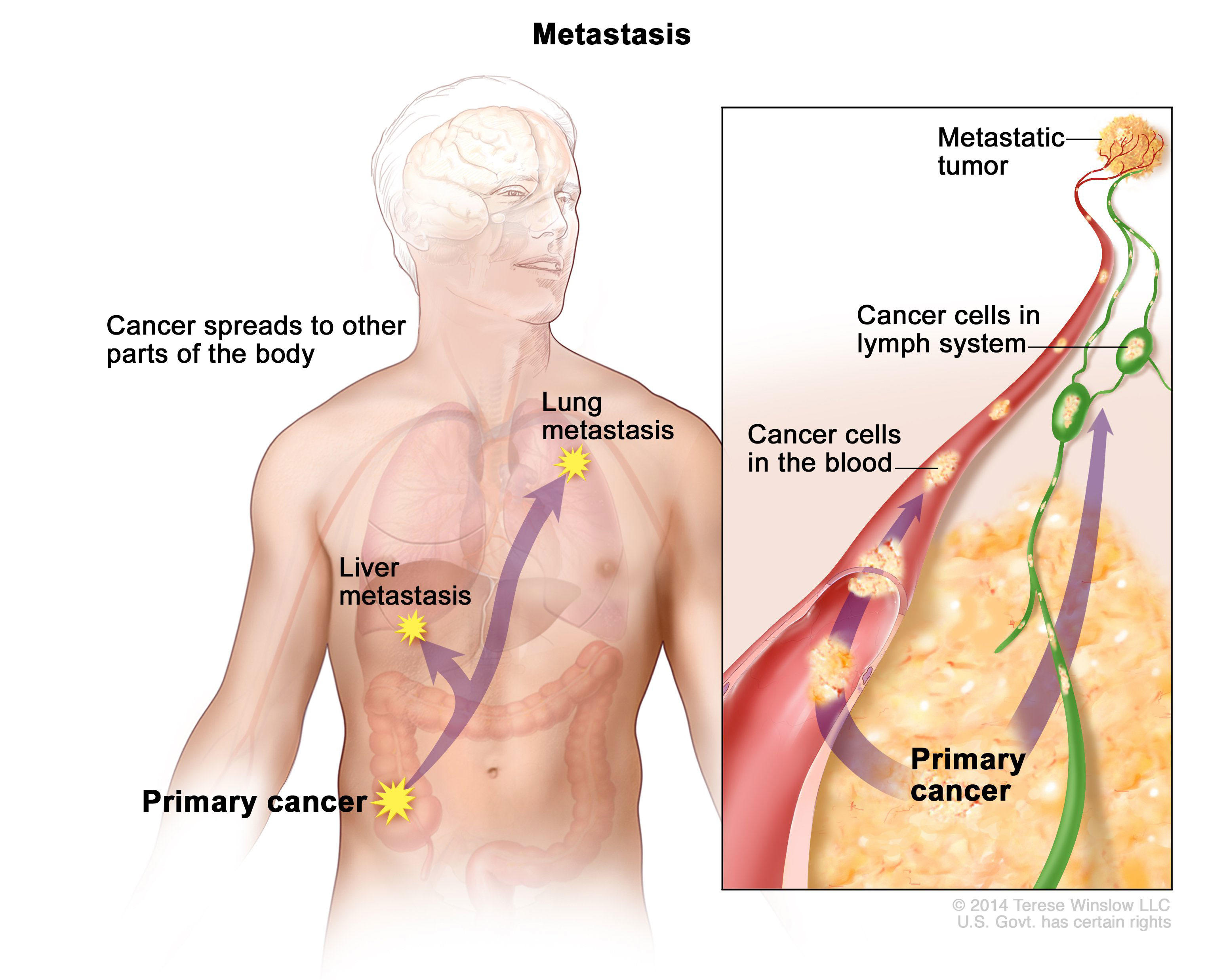 metastatic cancer can be cured
