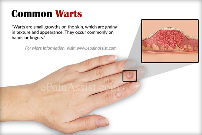 warts treatment on fingers