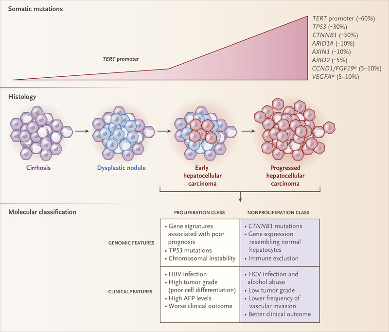 hepatocellular cancer metabolic syndrome