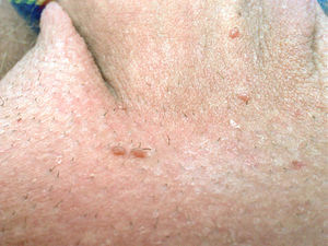 does hpv type 16 18 cause warts hpv scc skin