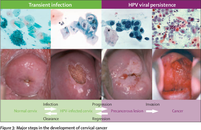 hpv virus is it dangerous benign basal cell papilloma