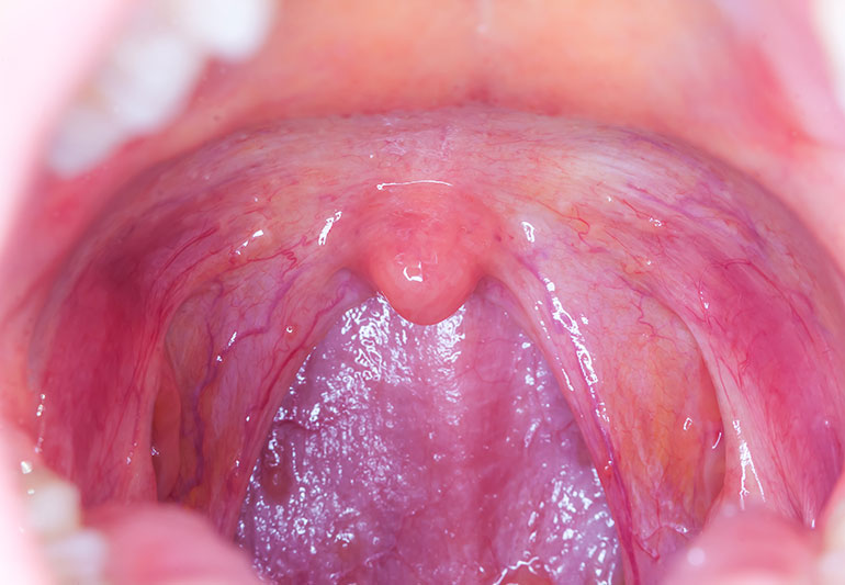 incidence of hpv throat cancer