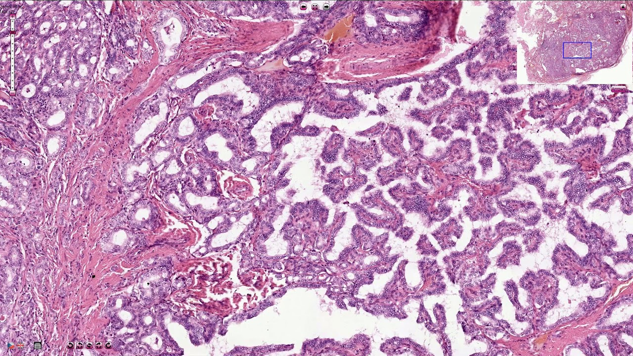 papillary thyroid cancer histopathology