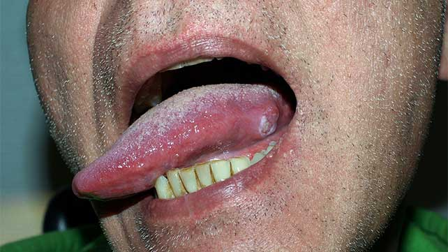 hpv caused tongue cancer