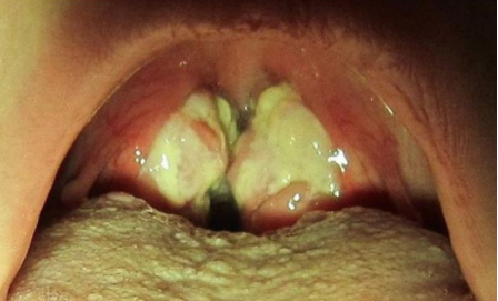 hpv virus caused by kissing