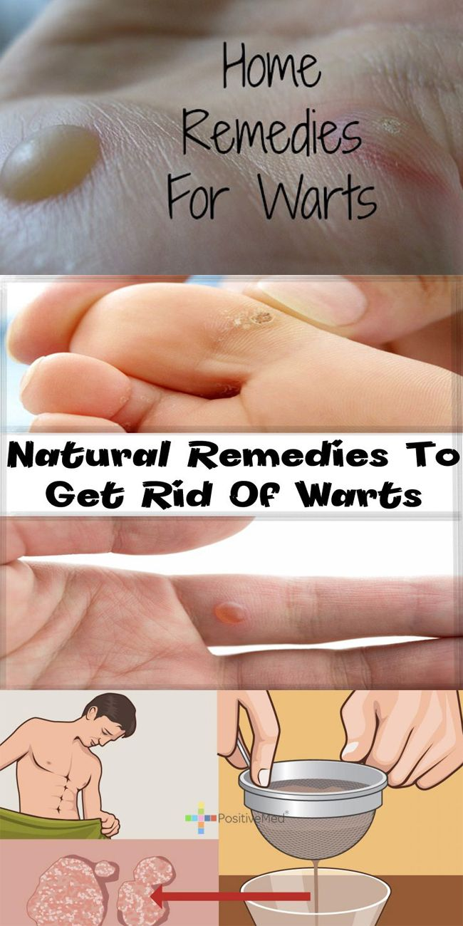 wart removal home remedy fast