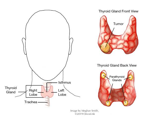 papillary thyroid cancer emedicine