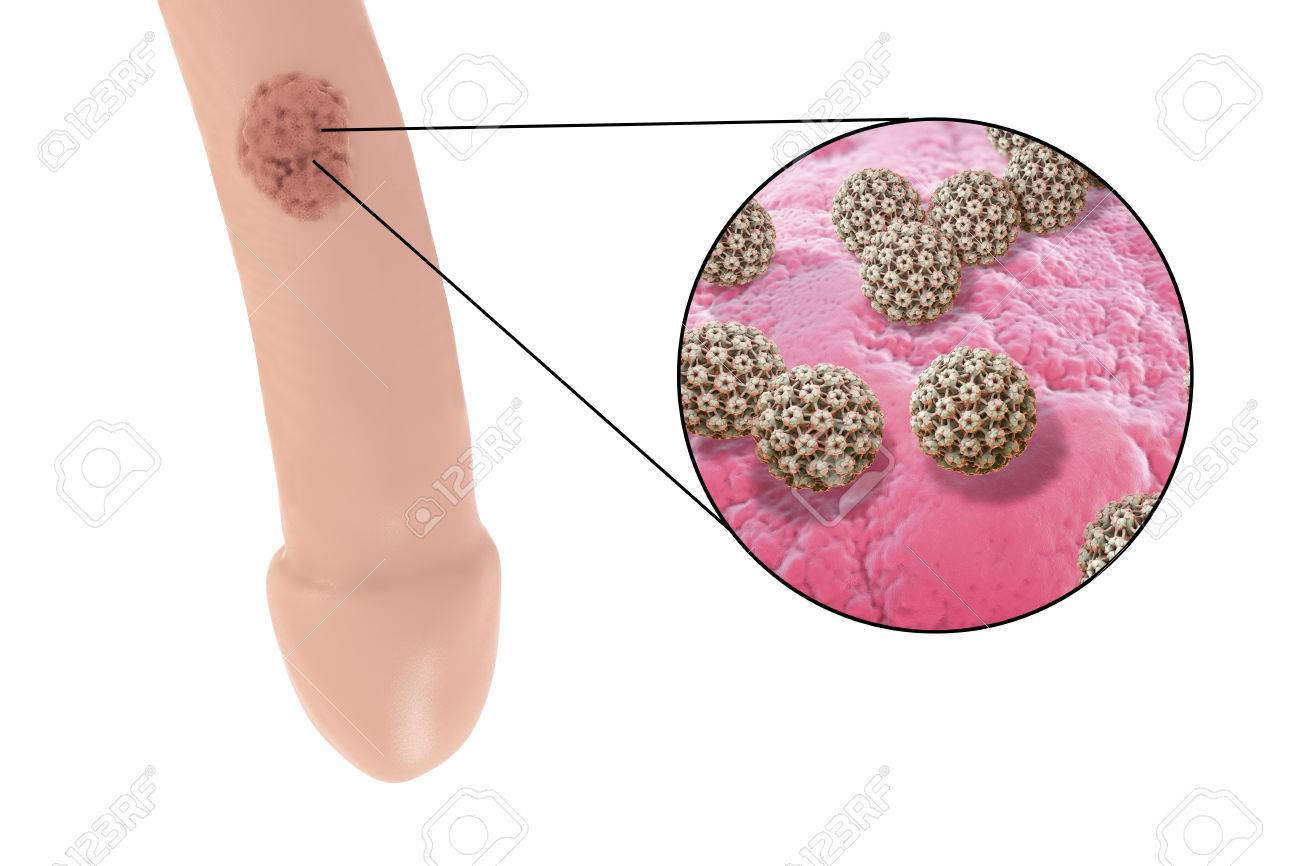 hpv for papilloma