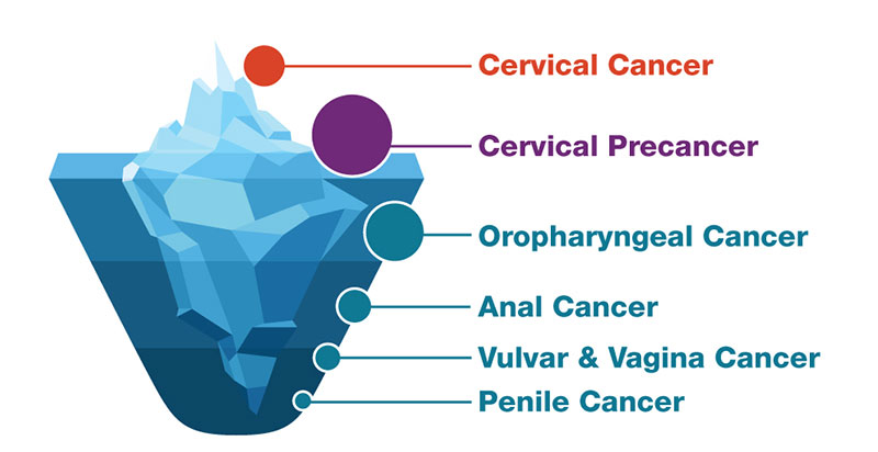 can papillomavirus cause cancer testicular cancer questions and answers