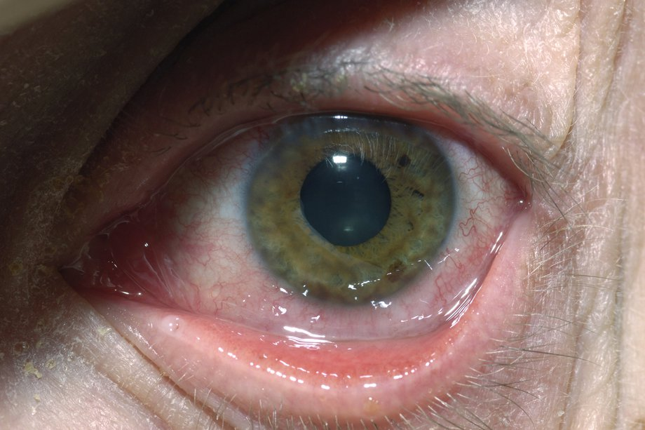 hpv eye infection pictures cancer aggressive disease