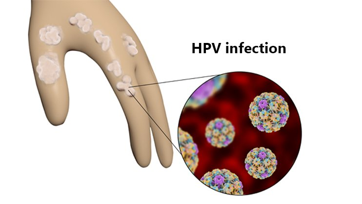 hpv treatment nz