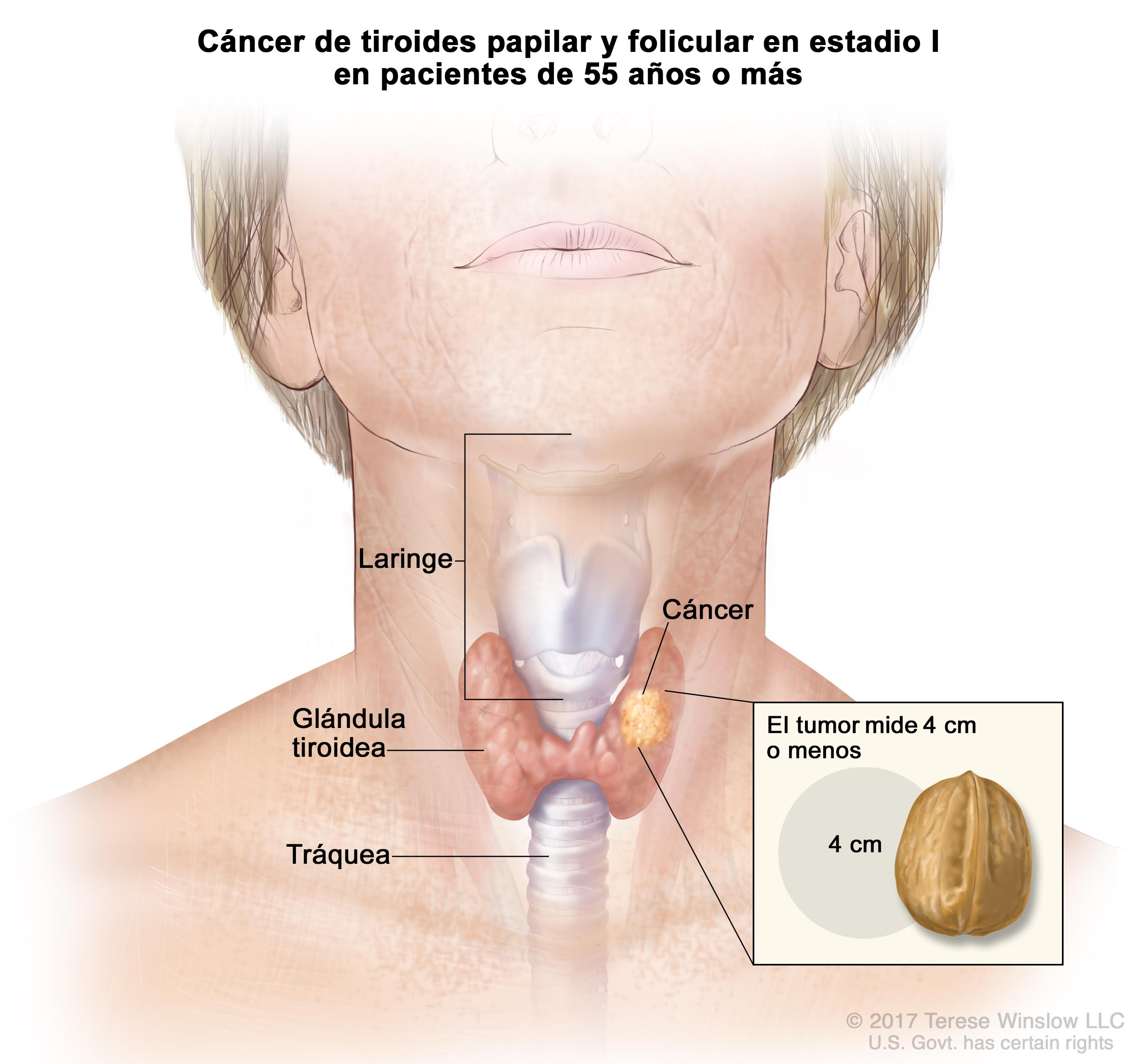 hpv cancer mouth symptoms