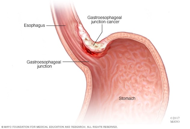 abdominal cancer early symptoms genital warts and cervical cancer risk