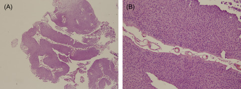 Histological Typing of Urinary Bladder Tumours