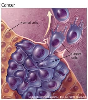 hpv causes uterine cancer