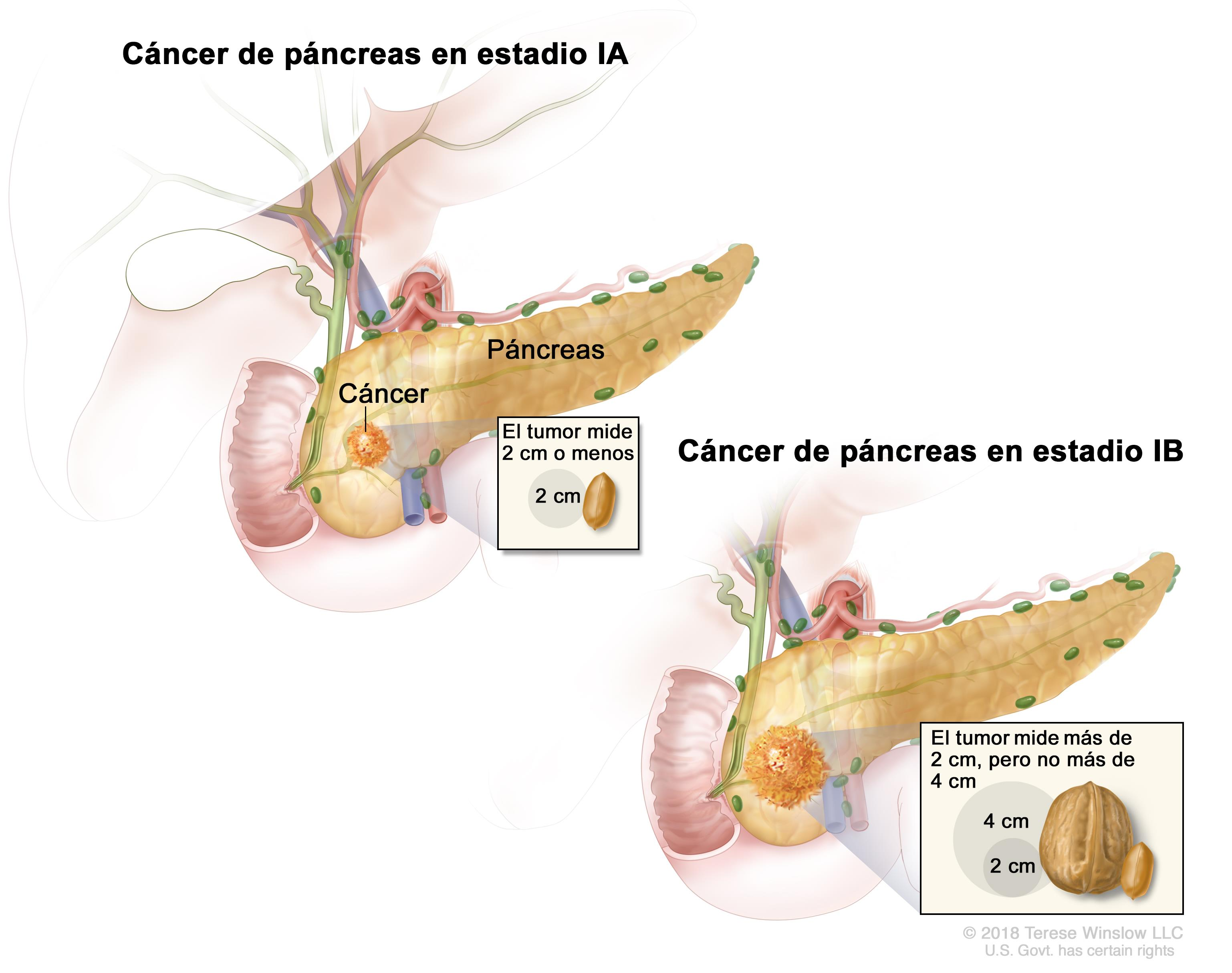 cancer de pancreas nutricion hpv inside nose