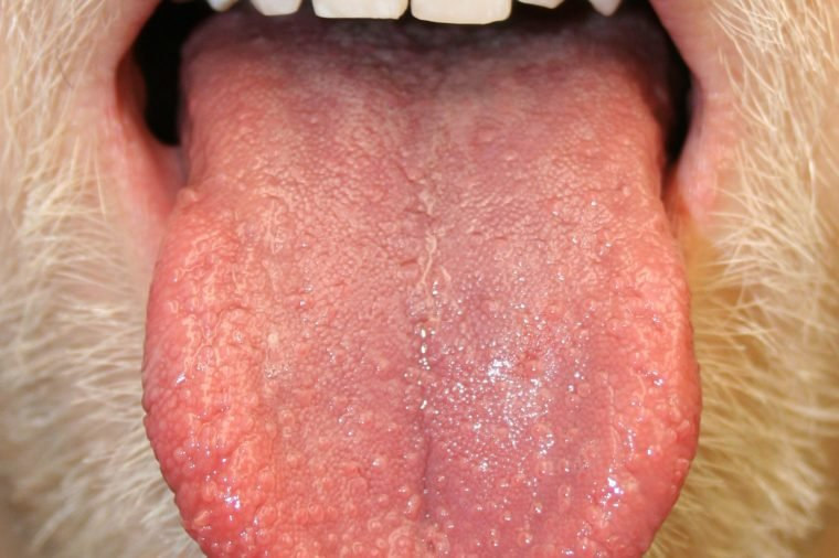 hpv on my tongue anemie 5 mois de grossesse