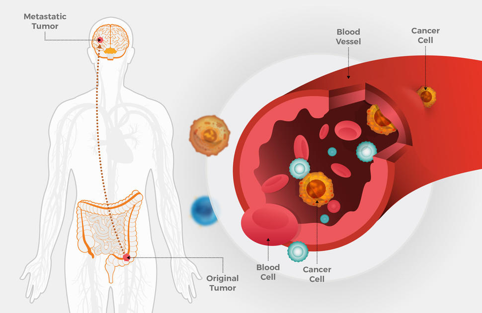 intestinal cancer chemotherapy