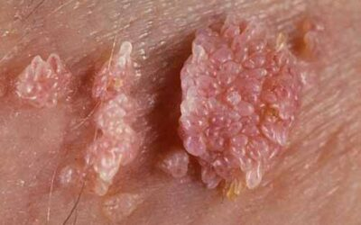 hpv warts and throat cancer