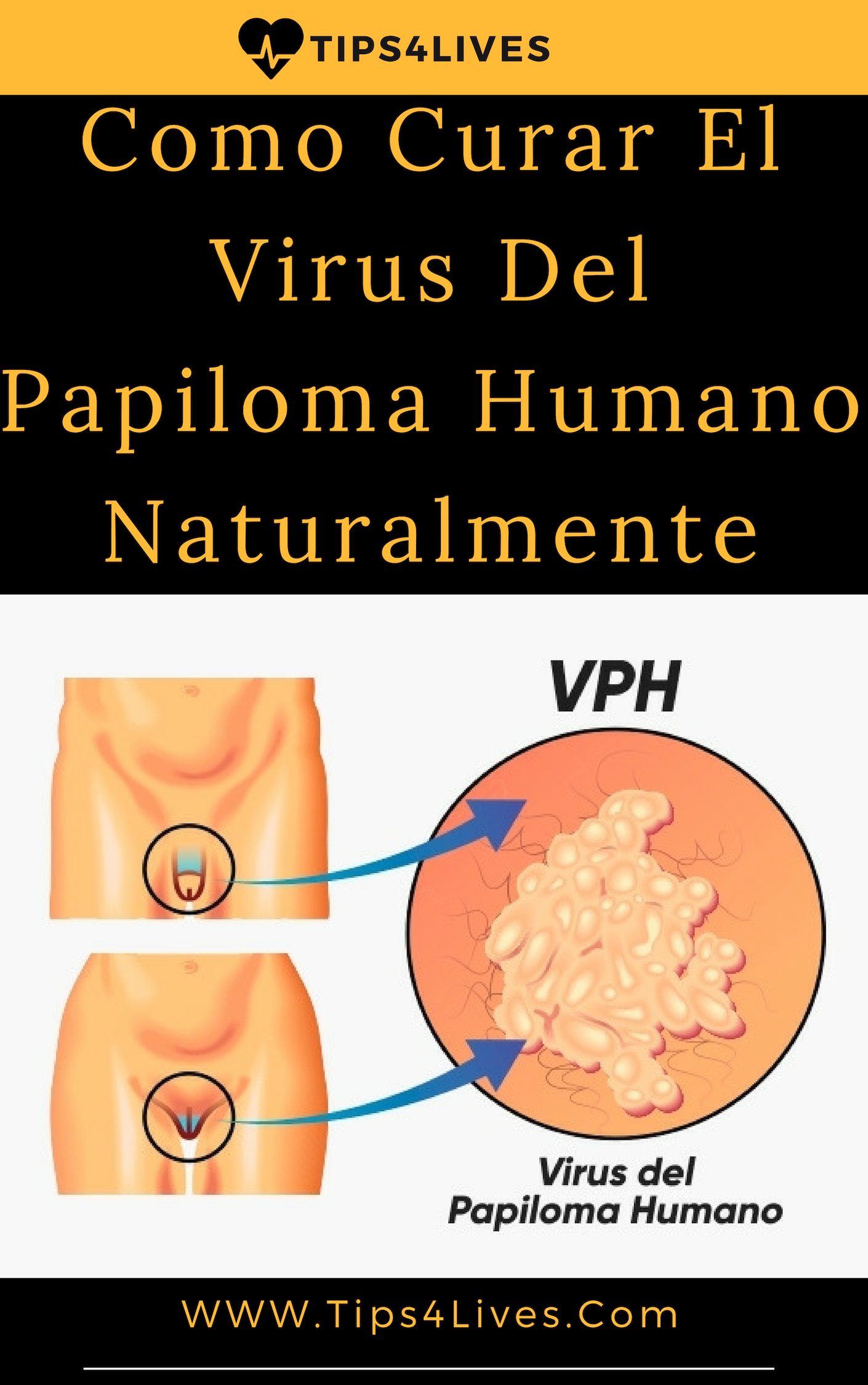 hpv impfung typen human papillomavirus infection male