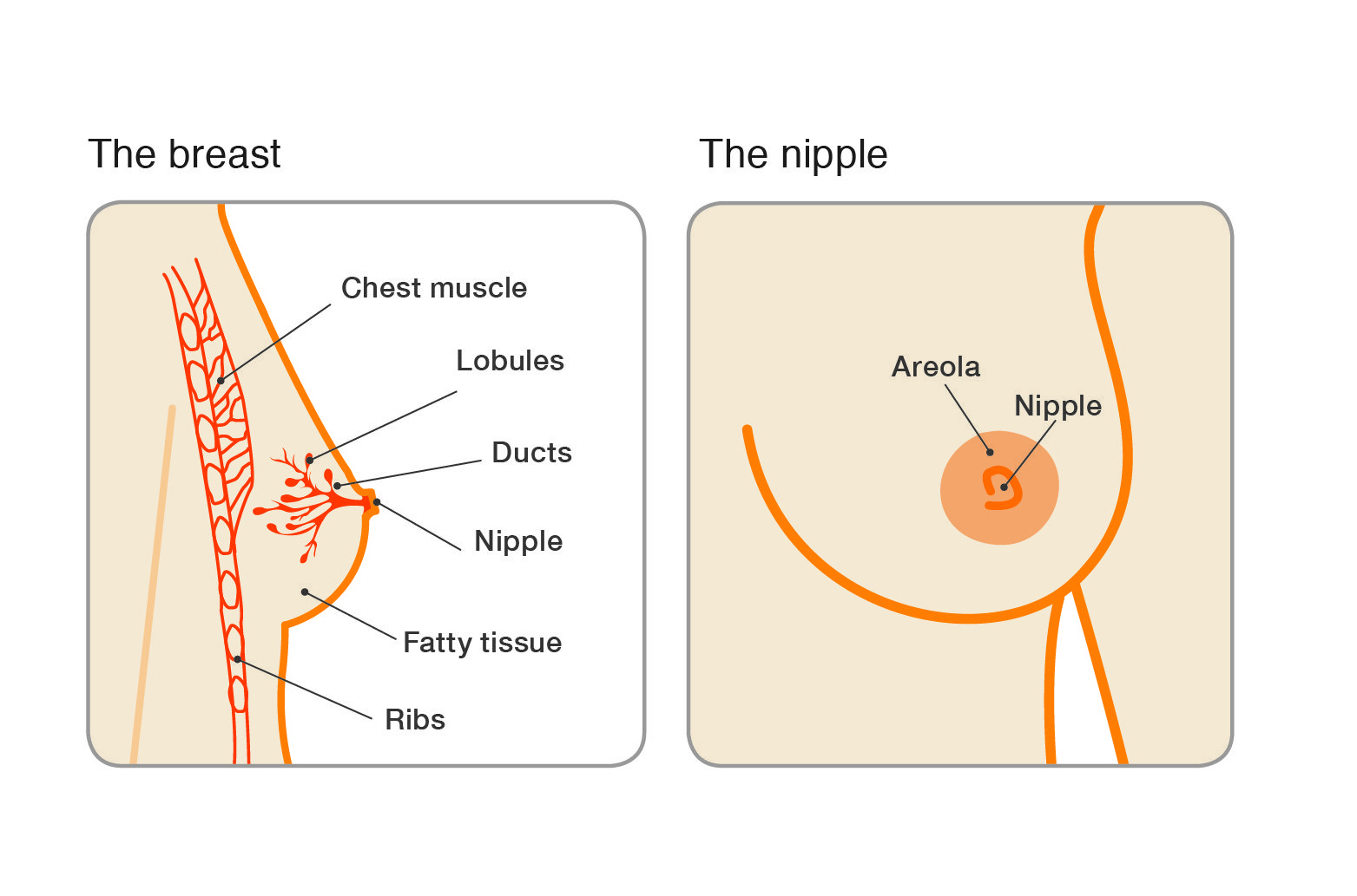 papillomas of breast cancer