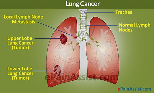 lung cancer benign vs malignant
